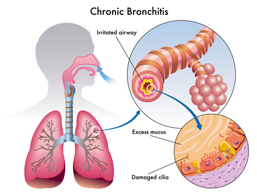 a description of bronchitis when the line the bronchial tubes become inflamed Thin sheets of tissue that line or cover various  the digestive system can also become inflamed in sjogren's syndrome,  bronchial tubes have become.